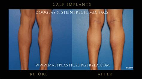 Calf Implants Surgery in Los Angeles